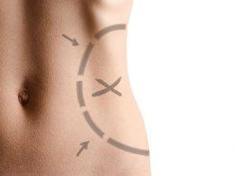 10 preguntas sobre liposucción