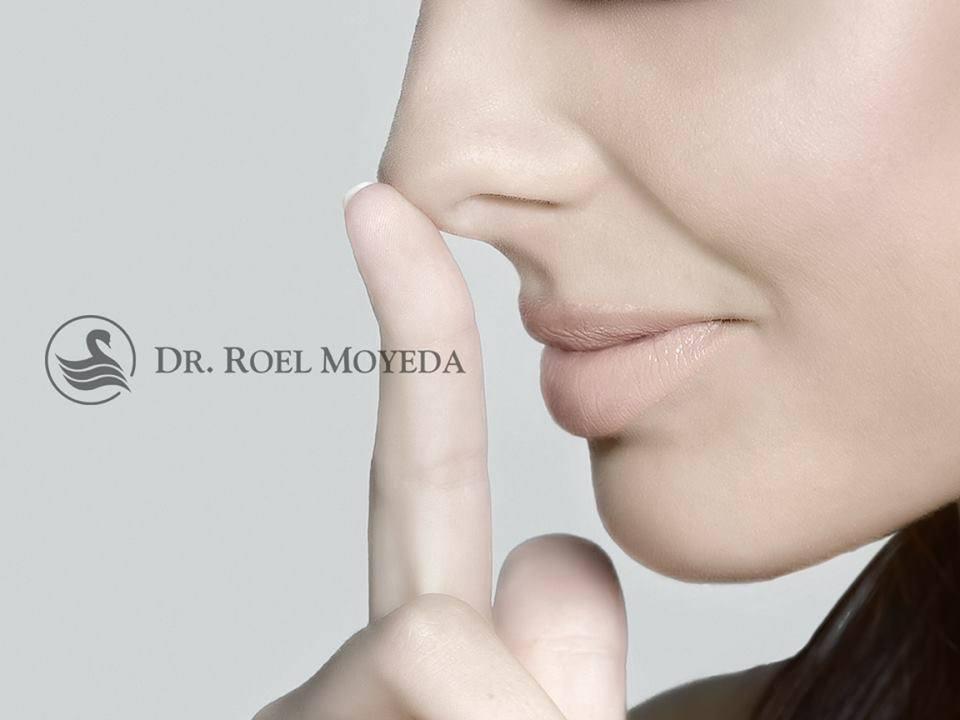 rinoplastia en monterrey