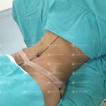 abdominoplastia en monterrey  Dr. Roel Moyeda