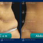 abdominoplastia en monterrey - antes y después