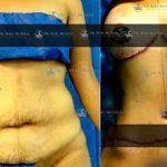 cirugia de abdominoplastia en monterrey
